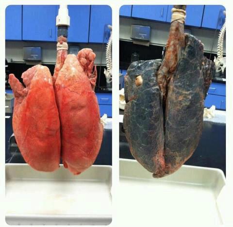 Comparación entre pulmones saludables (izquierda) y pulmones aquejados por el humo del cigarro.