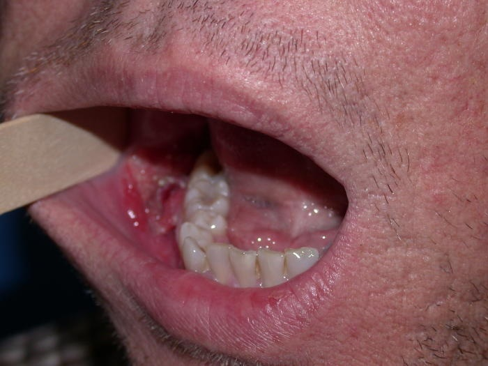 cancer bucal imagenes)